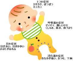 妊婦さんの食事と子供のアレルギーの関係について!予防はできる?